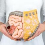 Учёные выяснили, какие продукты провоцируют рак кишечника
