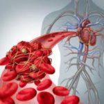 Что значит «оторвался тромб», объяснил медик-блогер Доктор Фил