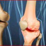 Факторы риска развития артроза и признаки заболевания